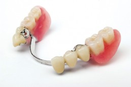 The GDC's hidden policy on illegal dental devices