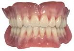 full-sets-of-dentures